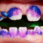 Odontologia de mínima intervenció